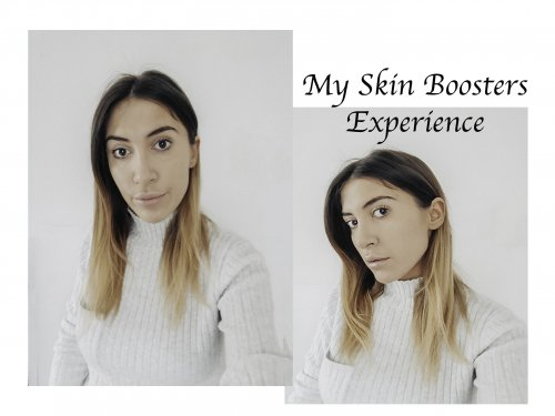 My Restylane Skin Boosters Experience